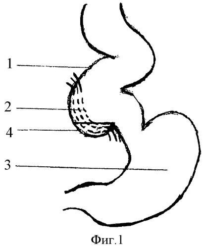 Способ хирургической коррекции ахалазии кардии iv стадии