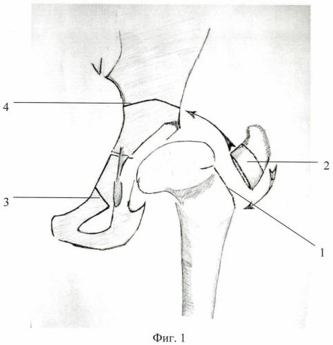 Способ выполнения транспозиции вертлужной впадины в ходе двойной остеотомии таза