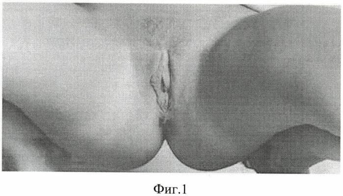 Способ клинической диагностики сократительной способности запирательной мышцы нижней трети влагалища