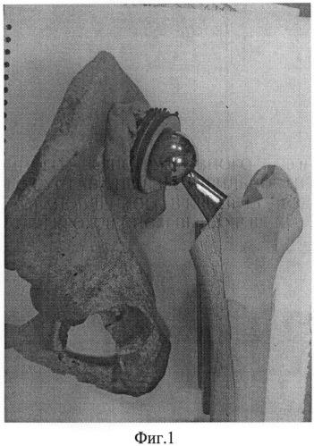 Способ ревизионного реконструктивного эндопротезирования тазобедренного сустава при нестабильности компонентов эндопротеза, установленного в крыле подвздошной кости при врожденном высоком вывихе бедра