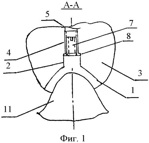 Надесневая опора для протезирования с регулируемым прижимом к слизистой оболочке альвеолярного отростка
