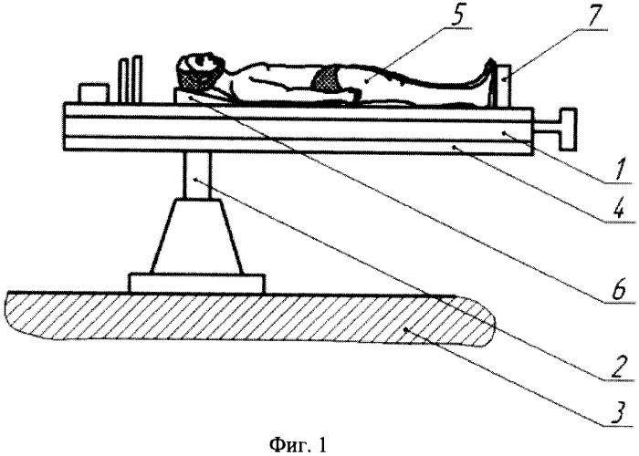 Способ лечения кохлео-вестибулярных расстройств у пациентов с остеохондрозом шейного отдела позвоночника