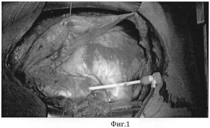 Способ хирургического лечения пациентов с сочетанным атеросклеротическим поражением сонных и коронарных артерий