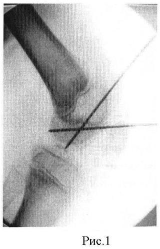 Способ оперативного лечения рассекающего остеохондрита мыщелков бедренной кости у детей и подростков