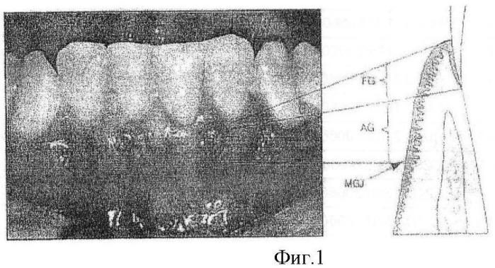 Заглушка для абатмента на время приживления импланта и абатмент на время приживления импланта, имеющий прижимную часть