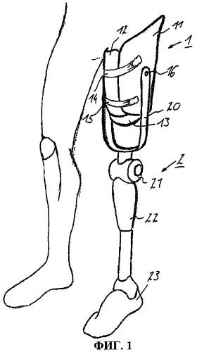 Приемная гильза протеза и система из приемной гильзы протеза и протезного устройства