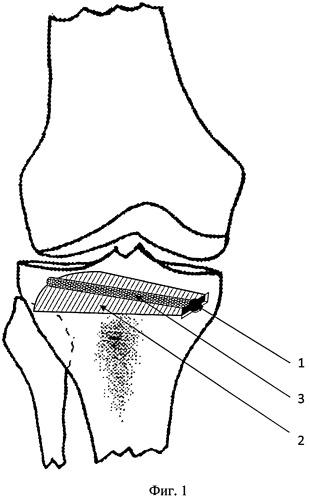 Способ хирургического лечения остеоартроза коленного сустава