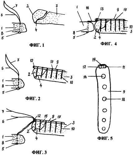 Способ хирургического лечения при переломо-вывихе акромиального конца ключицы