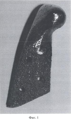 Способ эндопротезирования височно-нижнечелюстного сустава