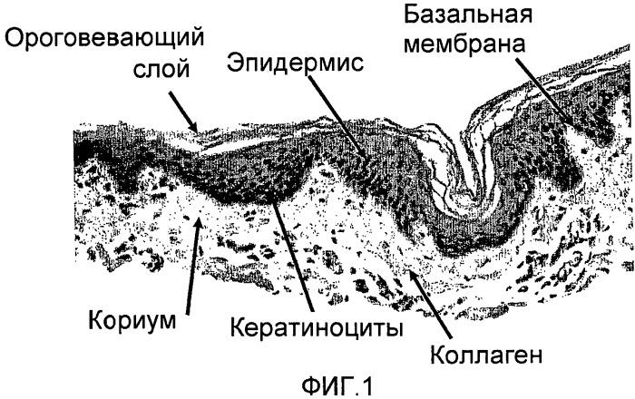 Ксеногенный фото