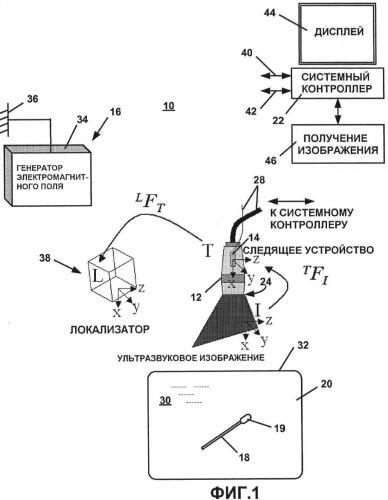 Система и способ автоматической калибровки отслеживаемого ультразвука