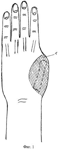 Способ реконструкции пальца при наличии дефекта мягких тканей кисти