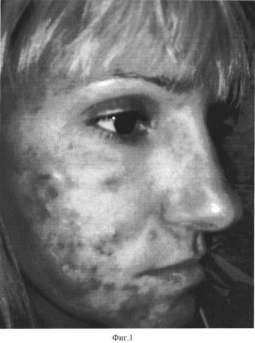 Способ лечения больных с гнойничковыми заболеваниями кожи