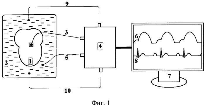 Способ регистрации механической работы изолированного сердца лягушки
