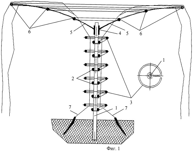 Способ формирования ствола и структуры кроны древесного виноградника (вариант русской логики - версия 3)