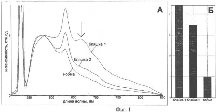 Способ обнаружения атеросклеротических бляшек с измененной метаболической активностью