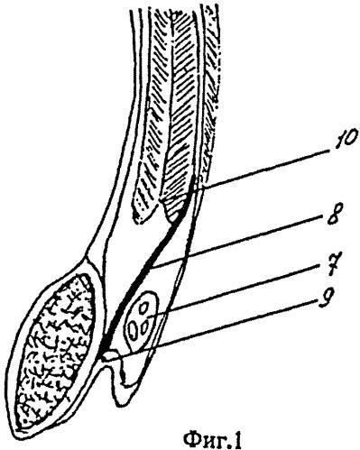 Способ герниопластики ущемленных паховых грыж