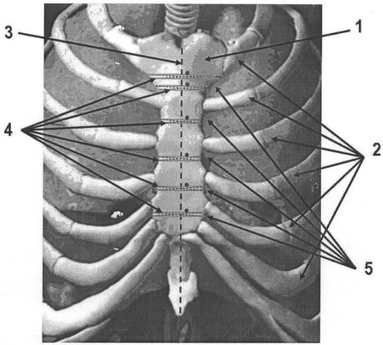 Способ фиксации грудины после аортокоронарного шунтирования у больных с ишемической кардиомиопатией