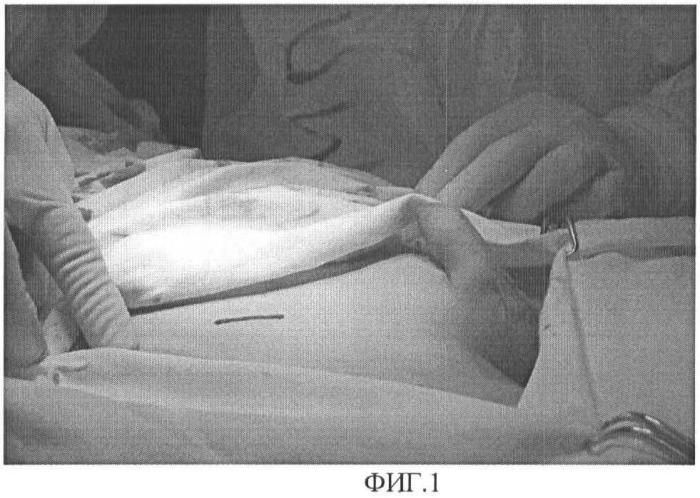 Способ орхиопексии