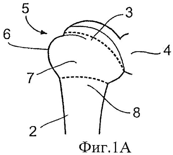 Медицинское устройство и способ фиксации шва к кости