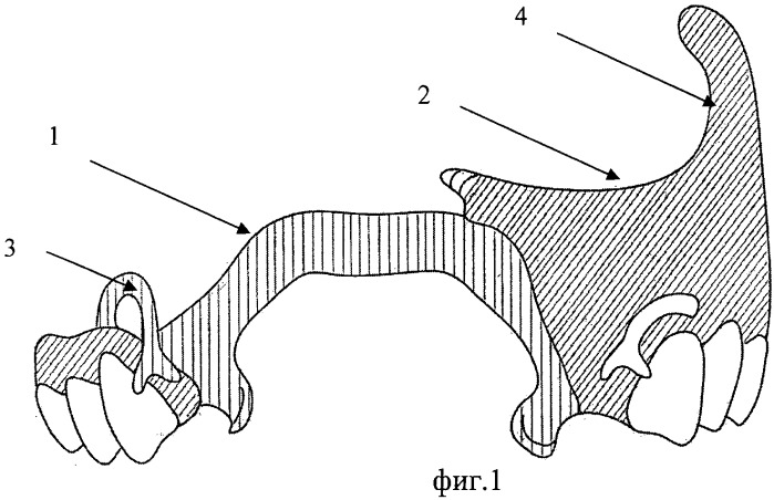 Зубочелюстной протез-обтуратор
