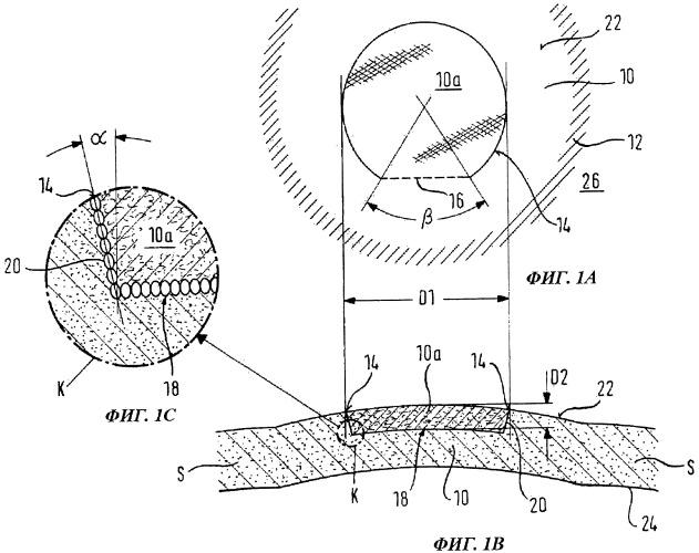 Аппарат для вырезания части ткани сфокусированным лазерным излучением