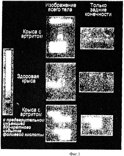 Лечение и диагностика заболеваний, опосредованных макрофагами