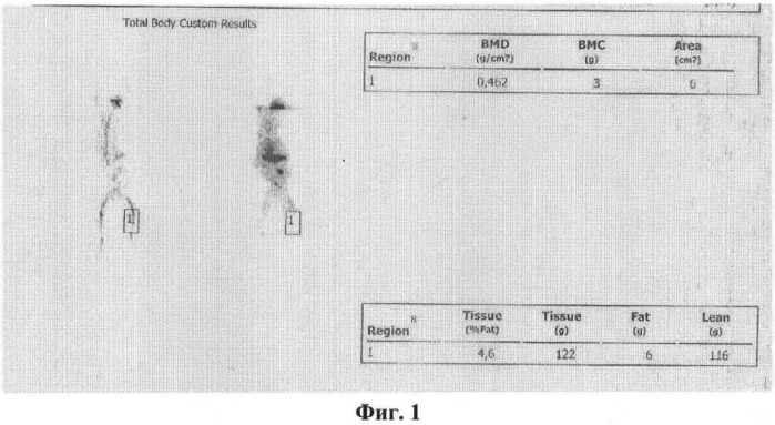 Способ создания модели остеопороза у кролика в эксперименте