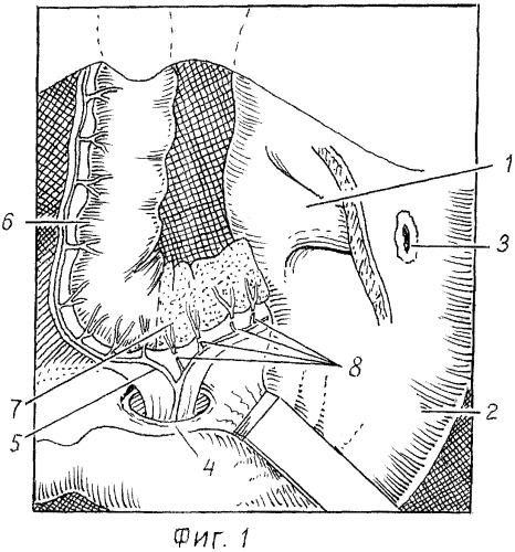 Способ наложения абдоминального колоэзофагоанастомоза при эзофагопластике у детей с атрезией пищевода