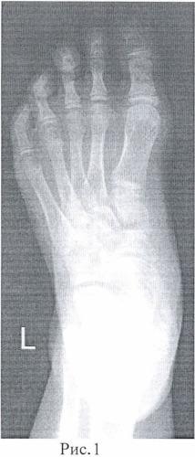 Способ лечения вальгусно-приведенной деформации стопы