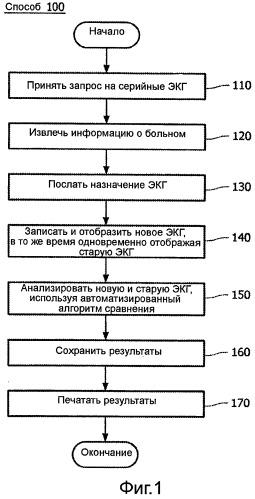 Система и способ объединения анализа серийных экг и назначения экг
