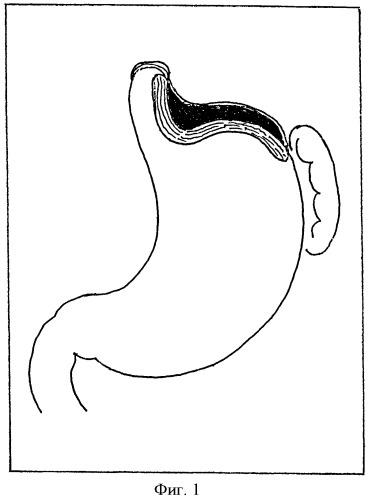 Способ хирургического лечения кардиоспазма iii стадии