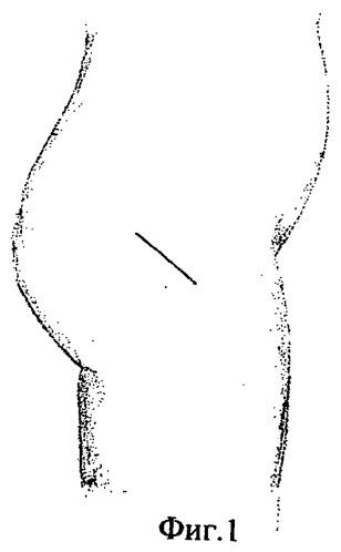 Способ малоинвазивного наружно-бокового доступа к тазобедренному суставу при первичном тотальном эндопротезировании