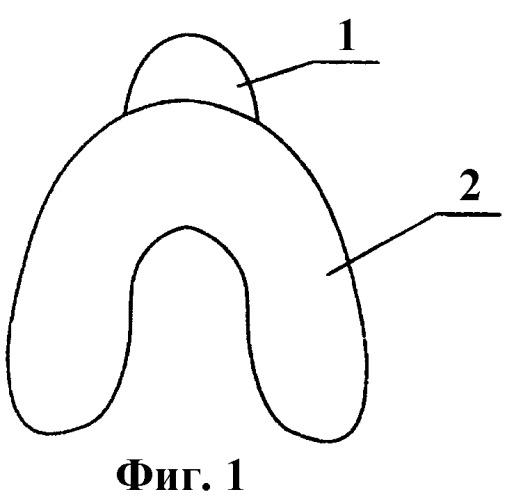 Индивидуальная ложка куретовых для снятия оттиска на беззубую челюсть (два варианта)