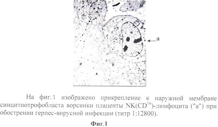 Способ диагностики повреждающего действия nk(cd16)-лимфоцитов на плаценту беременных, перенесших герпес-вирусную инфекцию, увеличивающего число ядер синцитиотрофобласта в состоянии апоптоза