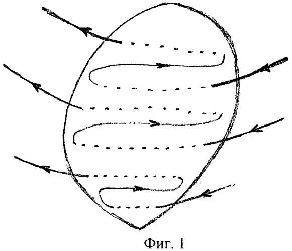 Способ ушивания ложа миоматозного узла после консервативной миомэктомии во время беременности