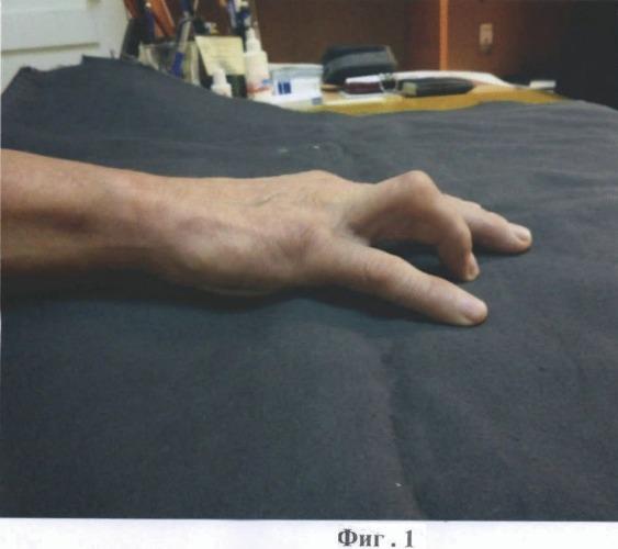 Способ лечения ятрогенной сгибательной контрактуры пальца кисти