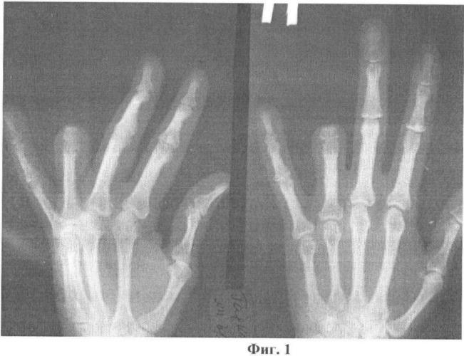 Способ кожно-костной реконструкции пальца кисти