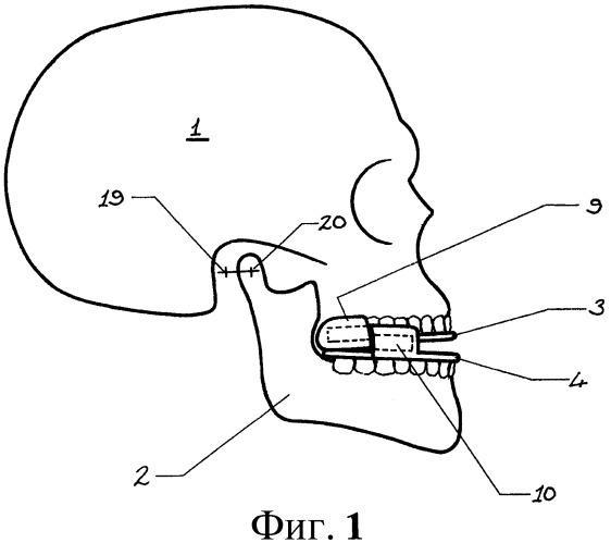 Устройство для облегчения апноэ во сне (варианты)