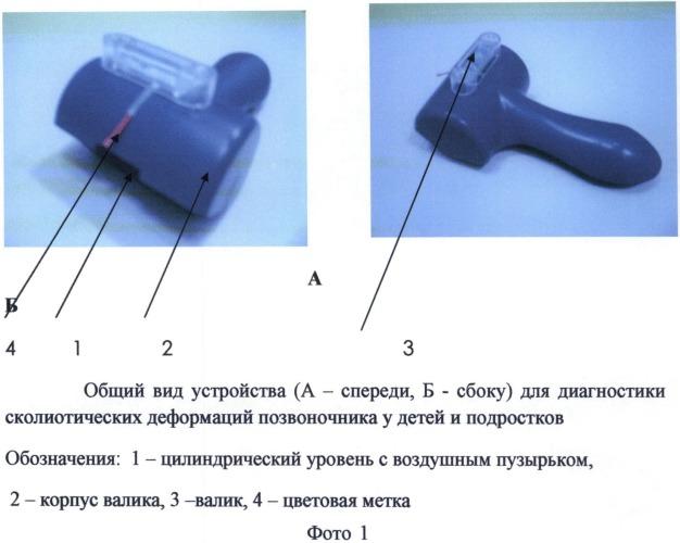 Устройство и способ диагностики сколиотических деформаций позвоночника у детей и подростков