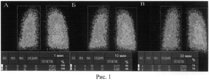 Способ дифференциальной диагностики хронической обструктивной болезни легких и бронхиальной астмы