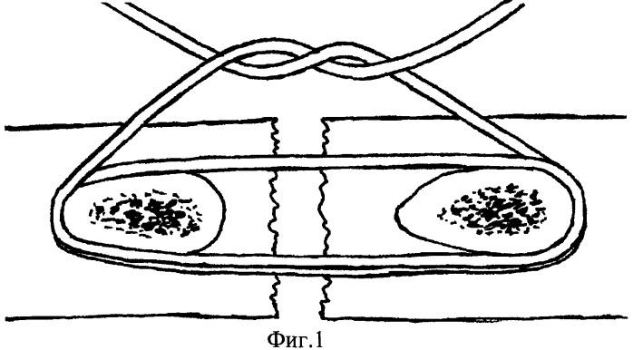 Блоковый хирургический шов