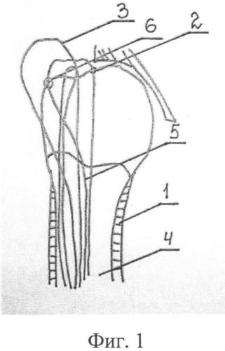 Способ хирургического лечения переломо-вывихов проксимального отдела плечевой кости напряженными спицами