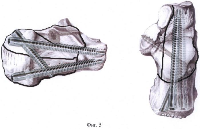 Способ лечения внутрисуставных импрессионных переломов пяточной кости