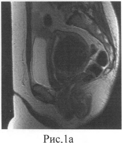 Способ подготовки гиперинтенсивных миом матки ii и iii мр-типов к фокусированной ультразвуковой деструкции под контролем магнитно-резонансной томографии