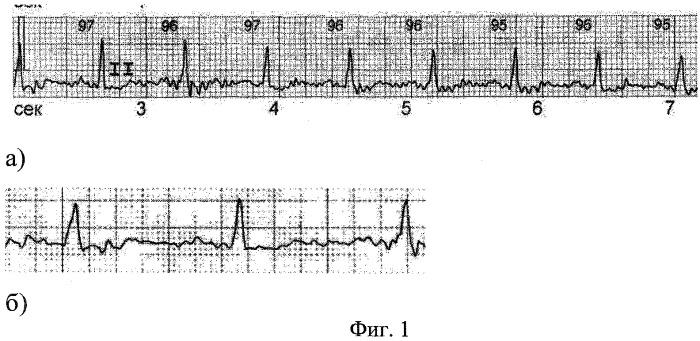 Способ диагностики внутрипредсердной блокады i степени у лиц молодого возраста с тахикардией