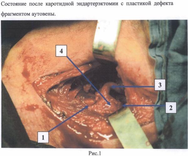 Способ экстравазального армирования сонных артерий при операции каротидной эндартерэктомии