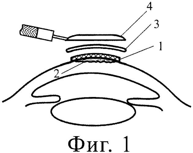 """Способ лечебной аппликации роговицы биопластическим материалом """"гиаматрикс"""""""