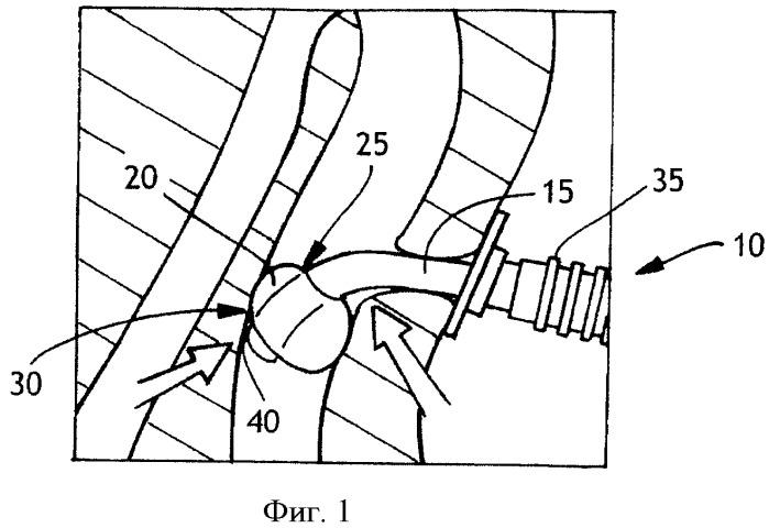 Улучшенная трахеостомическая трубка с баллонной манжетой