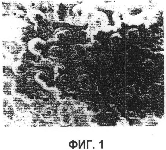 Жесткое или гибкое макропористое абразивное изделие